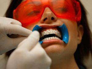bílé zuby - dentista