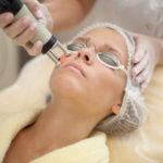 Laserový resurfacing jako cesta ke zdravé a krásné pleti